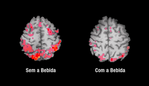 Como a bebida afeta océrebro